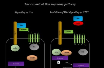 A WNT INHIBITORY FACTOR 1 (WIF-1) mint tumor biomarker