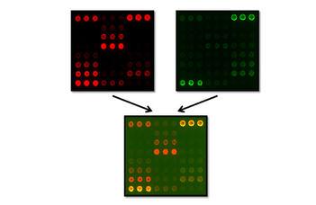 Komplement biomarkerek vizsgálata gyulladásos, autoimmun és onkológiai betegségekben